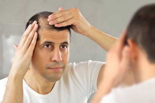 7 Solusi Mengatasi Kebotakan Atau Rambut Rontok